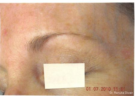 Laser For Veins And Redness: Patient 6 - After Image