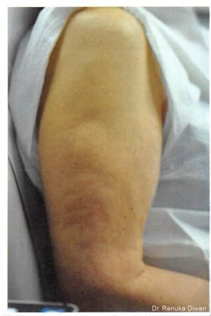 Skin Tightening: Patient 7 - After Image 1