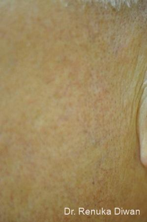 Laser For Veins And Redness: Patient 9 - After Image 2