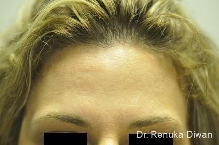 BOTOX® Cosmetic: Patient 20 - After Image 2