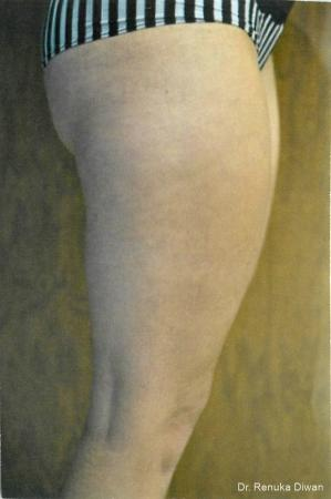 Cellulite Reduction: Patient 1 - After Image 1