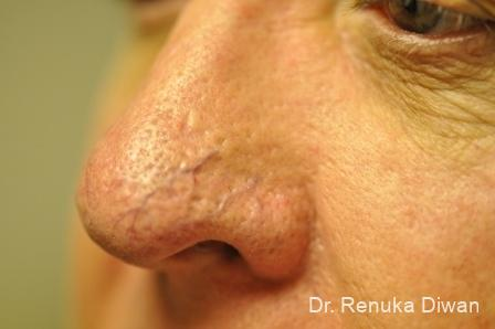 Laser For Veins And Redness For Men: Patient 2 - Before Image 1