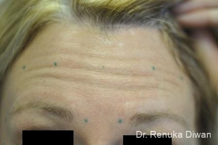 BOTOX® Cosmetic: Patient 12 - Before Image