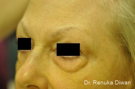 Blepharoplasty: Patient 7 - Before Image 1