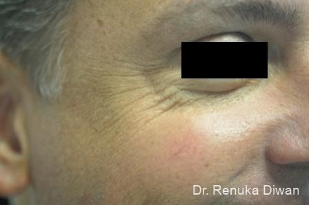 Crows Feet Creases: Patient 6 - Before Image 1