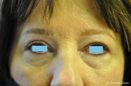 Blepharoplasty: Patient 3 - After Image 1