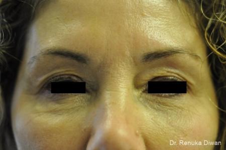 Dark Circles: Patient 16 - After Image 1