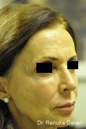 Non-Surgical Facelift: Patient 3 - After Image
