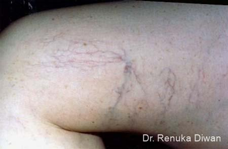 Veins On Legs: Patient 2 - Before Image