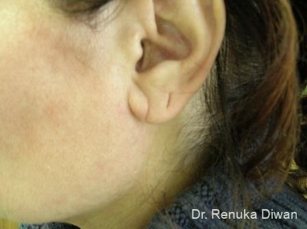 Earlobe Surgery: Patient 4 - Before Image