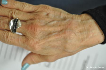 Hand Augmentation: Patient 3 - Before Image