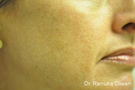 Lasers For Brown Spots: Patient 10 - Before Image 1