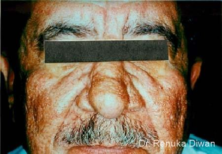 Lasers For Rhinophyma: Patient 1 - After Image 1