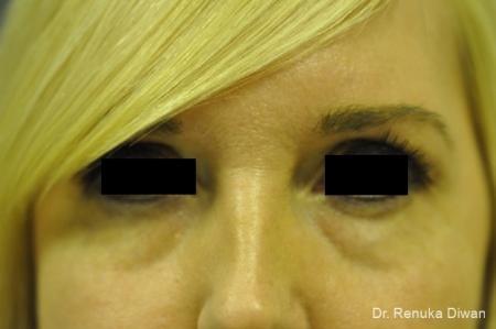 Dark Circles: Patient 17 - Before Image 1