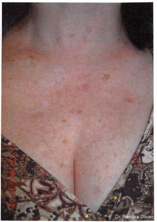Lasers For Brown Spots: Patient 2 - Before Image