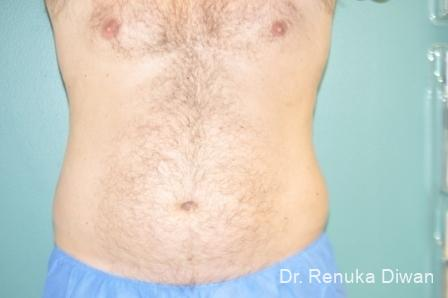 Coolsculpting For Men: Patient 2 - After Image 1
