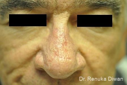 Laser Skin Resurfacing For Men: Patient 2 - After Image 1