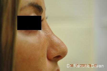 Non-Surgical Rhinoplasty: Patient 2 - Before Image 1