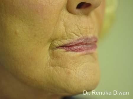 Lips And Mouth: Patient 8 - Before Image