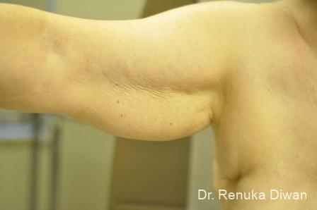 Liposuction: Patient 19 - Before Image 1