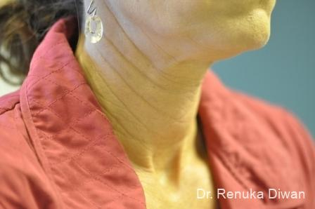 Neck Creases: Patient 2 - Before Image 1