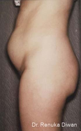 Liposuction: Patient 11 - Before Image 1