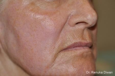 Laser Skin Resurfacing - Face: Patient 8 - After Image 1