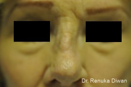 Non-Surgical Rhinoplasty: Patient 1 - Before Image 3