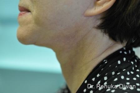 Facelift & Neck Lift: Patient 2 - After Image 1