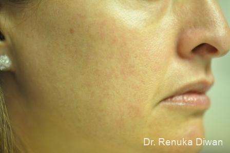 Lasers For Brown Spots: Patient 10 - After Image 1