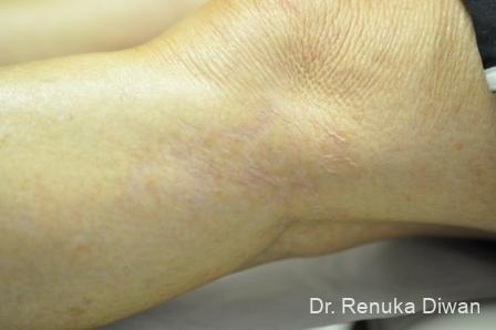 Scar Revision: Patient 1 - After Image