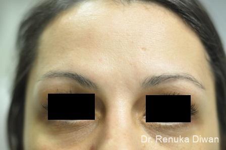 Dark Circles: Patient 13 - Before Image 1