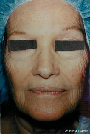 Laser Skin Resurfacing: Patient 6 - Before Image