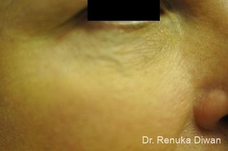Laser For Veins And Redness: Patient 16 - Before Image 1