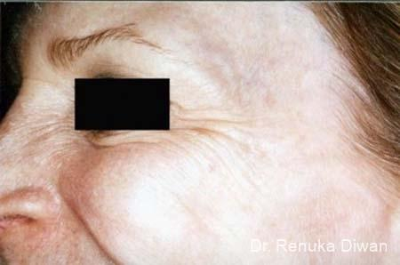 BOTOX® Cosmetic: Patient 19 - Before Image