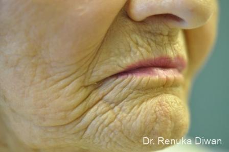 Laser Skin Resurfacing: Patient 11 - Before Image 1