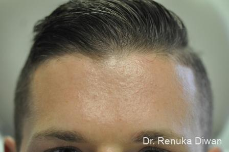 Chemical Peel: Patient 3 - Before Image 1