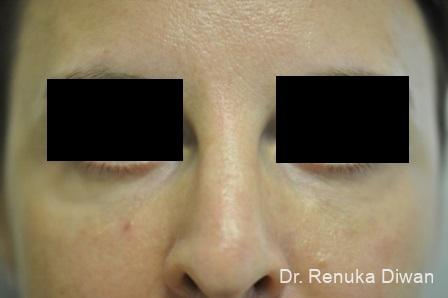 Dark Circles: Patient 14 - After Image 1