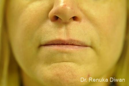 Smile Lines: Patient 5 - After Image 1