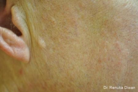 Laser For Veins And Redness: Patient 9 - After Image 1