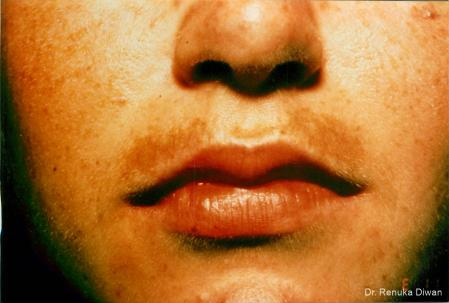 Lasers For Brown Spots: Patient 6 - Before Image 1