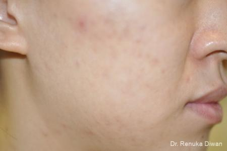Chemical Peel: Patient 5 - Before Image