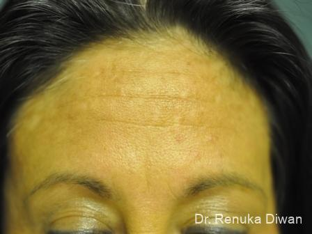 BOTOX® Cosmetic: Patient 13 - Before Image 1