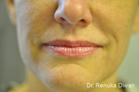 Smile Lines: Patient 1 - After Image 1