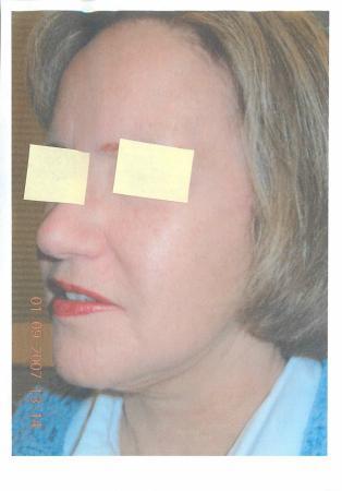 Facelift & Neck Lift: Patient 3 - After Image