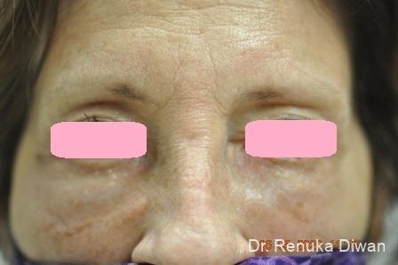 Dark Circles: Patient 21 - After Image 1