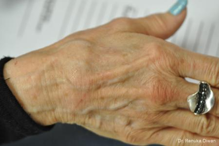 Hand Augmentation: Patient 2 - Before Image 1