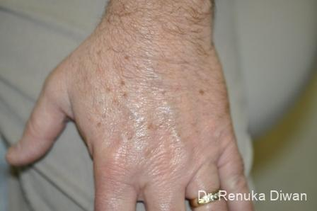 Lasers-for-brown-spots-for-men: Patient 1 - Before Image