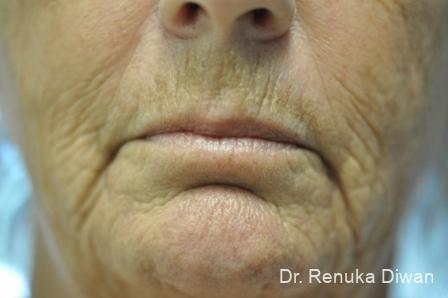 Laser Skin Resurfacing - Face: Patient 6 - Before and After Image 2