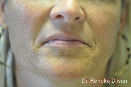 Lips And Mouth: Patient 17 - Before Image 1